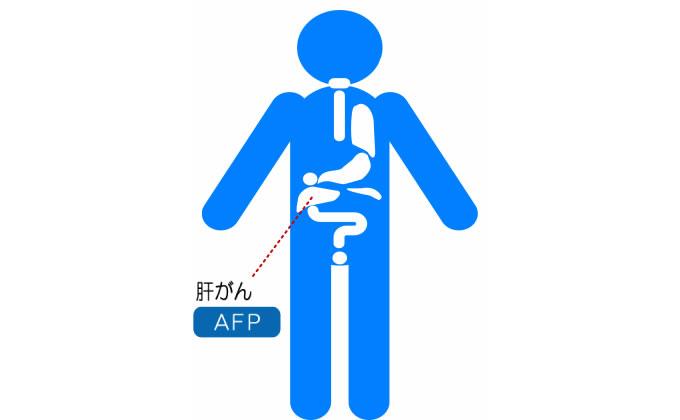 AFP検査
