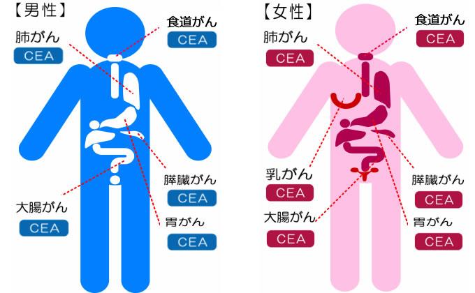 CEA検査