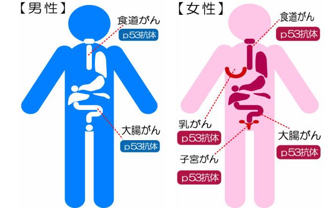 p53抗体検査